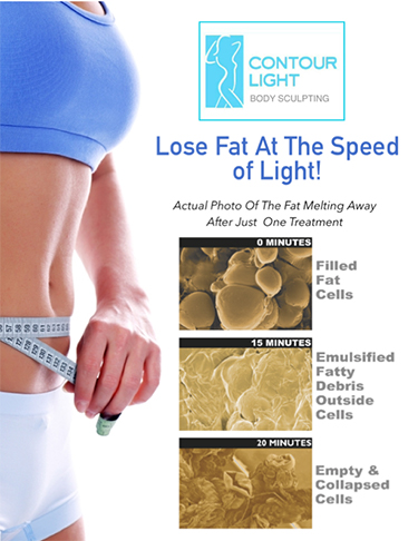 Weight Loss Williston ND Contour Light Fat Melting