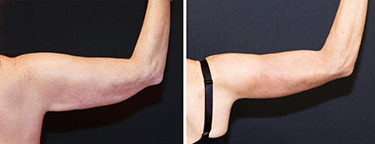 Weight Loss Williston ND Contour Light Treated Arm Flap Before And After