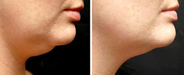 Weight Loss Williston ND Contour Light Treated Double Chin