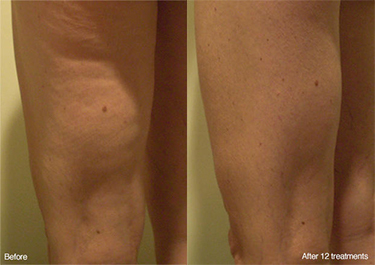 Weight Loss Williston ND Contour Light Treated Leg Before And After 12 Treatments