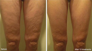 Weight Loss Williston ND Contour Light Treated Legs 2 Before And After 12 Treatments