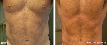 Weight Loss Williston ND Contour Light Treated Mans Belly Before & After 10 Treatments