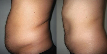 Weight Loss Williston ND Contour Light Treated Mans Belly Before & After